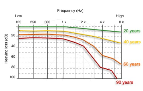 What is Normal Hearing Loss with Age