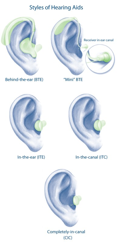 Which Hearing Aid Brand is the Best - Hearing Aid Diagram